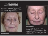 melasma-before_after-1024x721
