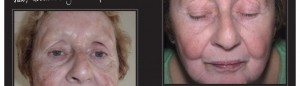 melasma-before_after-1000x288